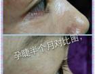 香港peitdermar孕睫术