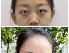 郑州想要做双眼皮的可以看看我的真实经历