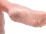 秋冬季节脚裂粗糙怎么修复改善