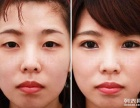 平顶山医美盘点要做双眼皮修复术的情况
