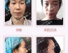 北京市自体脂肪面部填充医院哪家好丨 艾玛整形韦元强