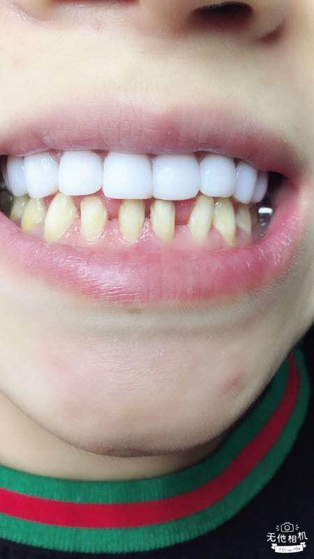 2018火爆项目 明星牙齿美白的奥妙 小白牙技术让你一天拥有