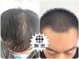 纹发操作需要多长时间 需要几次 灰米纹发 上海纹发服务机构