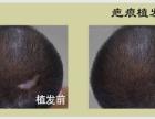 沈阳协和植发医院专家告诉你疤痕种植需要满足什么条件?