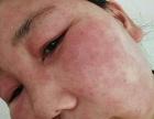 得了激素性皮炎怎么办?激素脸毁容?
