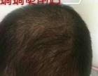 蜗蜗纯姜洗发水可以治斑秃和秃顶吗好用吗用多久可以生发!