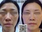 深圳蔻瑞莎干细胞疗法去抬头纹厂家批发
