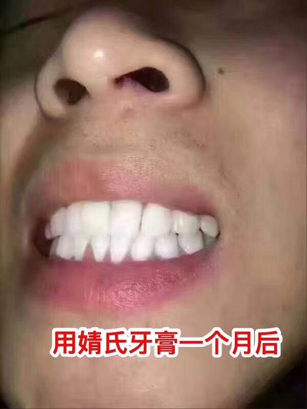 聚米婧氏草本牙膏怎么做代理