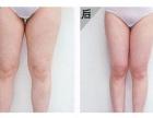 常德瑞美整形为您解答大腿吸脂术的疤痕问题