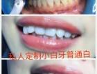 你有牙黄,牙缝大,牙洞的苦恼吗?安庆小白牙让你心想事成