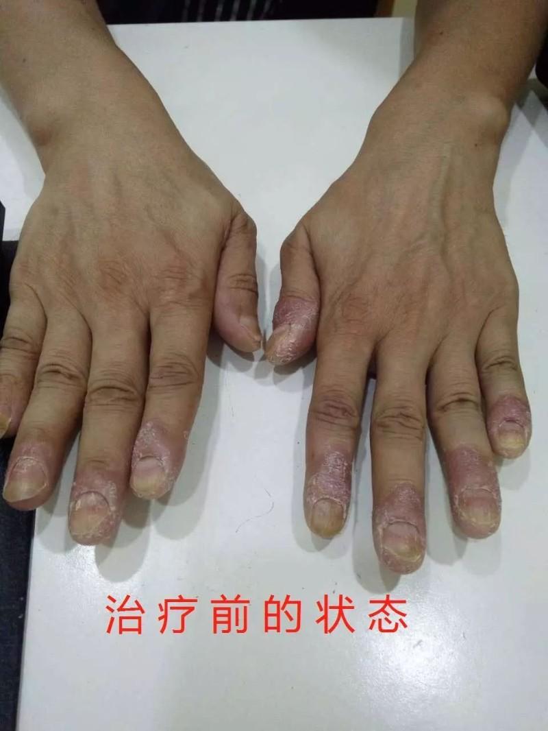 中药治疗白癜风牛皮癣等皮肤疾病培训