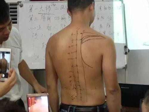 长沙中湘中医门诊部针灸推拿培训班开课火热报名中~