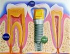 福州牙科医院种植牙一颗多少钱