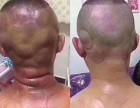 深圳布吉下水径肩颈问题