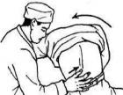 脊柱侧弯 青少年发育畸形(驼背)