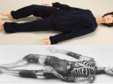 美国Pixy型X射线医学影像模拟人X射线仿真人教学模体