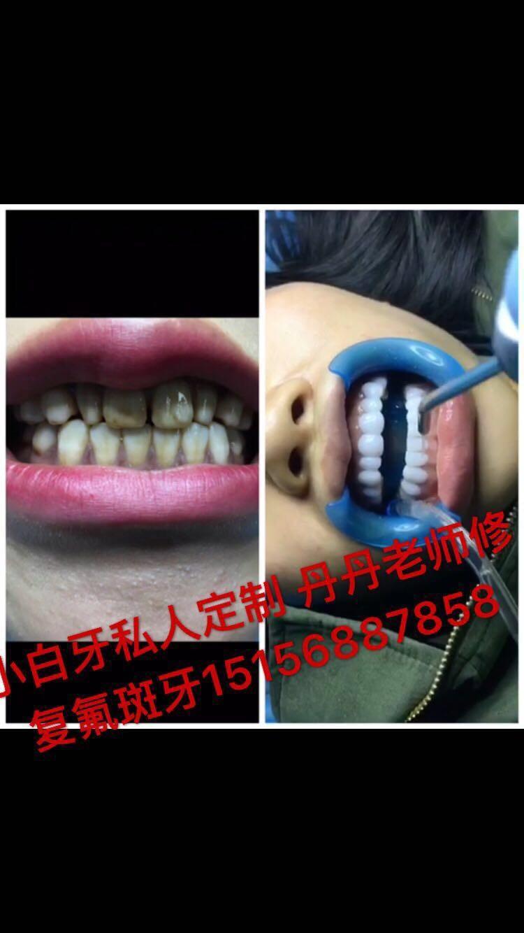 盐城地区私人订制美白牙齿 让你和明星一样的美丽牙齿