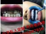 南京私人订制美白牙齿 小白牙 让你和明星一样的美白牙齿