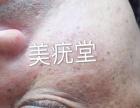 北京美疣堂科技专业扁平疣清理治疗