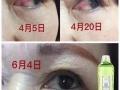 福瑞达心生爱目洗眼液眼部护理专家