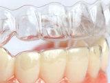 推荐材质优良的牙齿矫正,便宜又实惠的整牙大量供应