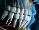 合肥种植牙多少钱,什么影响种植牙费用