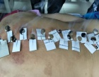 梅州哪里学习针灸拔罐刮痧正骨推拿培训