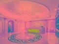 郑州瑞亚整形美容医院丰太阳穴的方法和优势