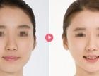 脸部吸脂适宜的人群有哪些呢