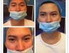 CS形象设计 非手术智慧型韩式无痕双眼皮